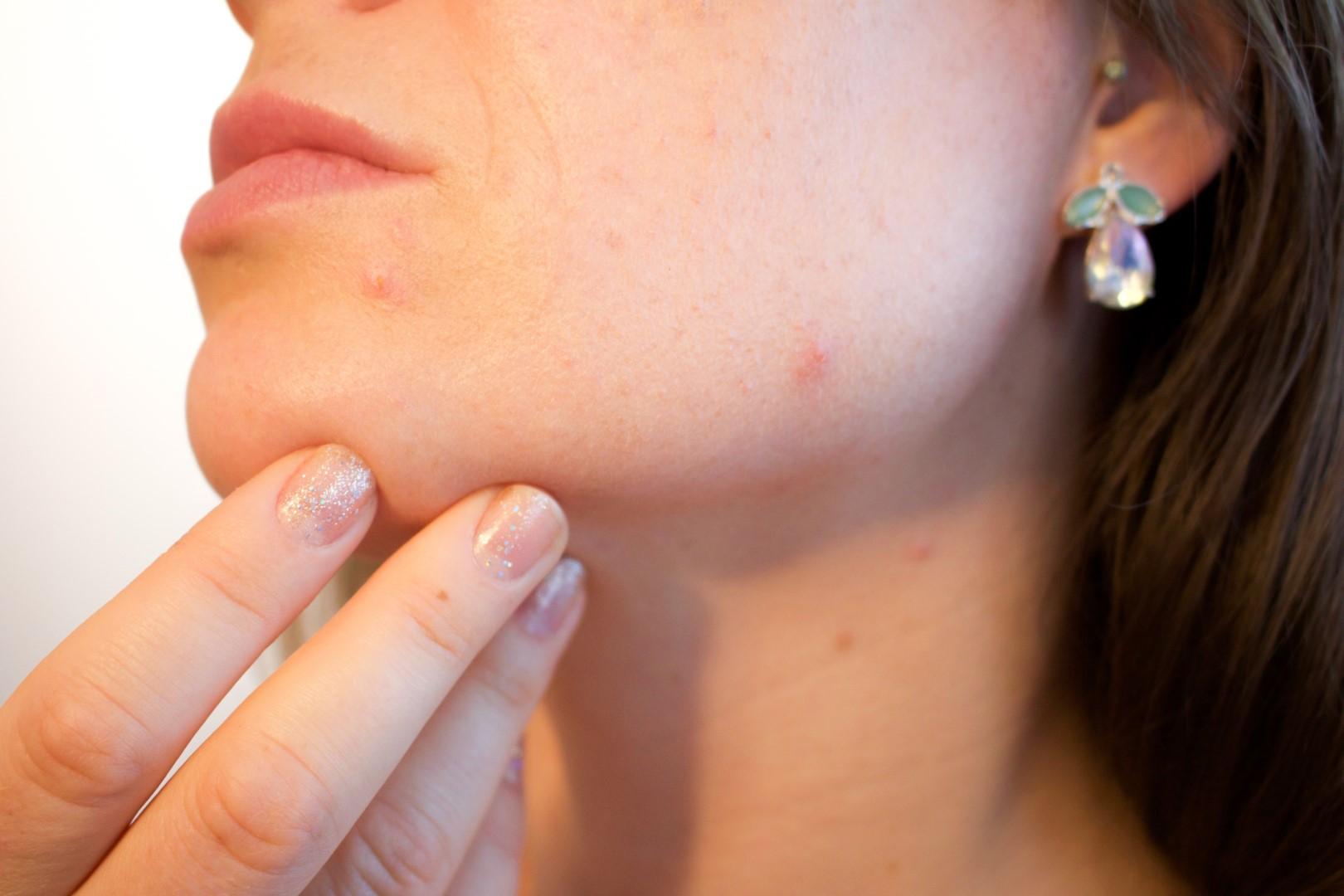Uw huisarts vraagt advies aan de dermatoloog